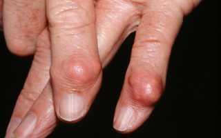 Тофусы при подагре – симптом поздней стадии развития заболевания