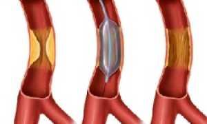 Балонная ангиопластика — показания к проведению, подготовка, реабилитация