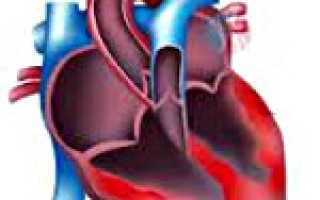 Миокардит – симптомы и лечение, этиология и патогенез, профилактика и прогноз