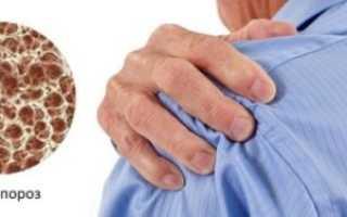 Остеопороз плечевого сустава – причины болезни, симптоматика, диагностика, лечение