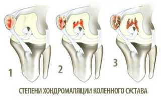 Хондромаляция коленного сустава – основная информация о заболевании