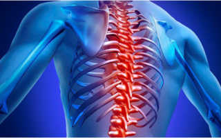 Корешковый синдром грудного отдела – симптомы заболевания и методы профилактики обострений