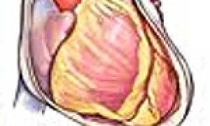 Констриктивный перикардит — причины развития, патогенез и лечение